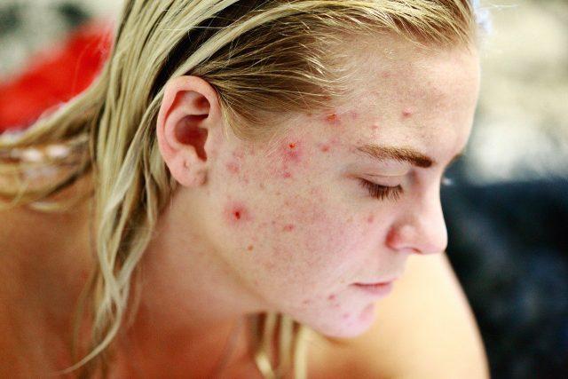 Peau acnéiques : comment le traiter ?